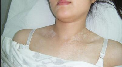武汉白癜风的基本治疗方法