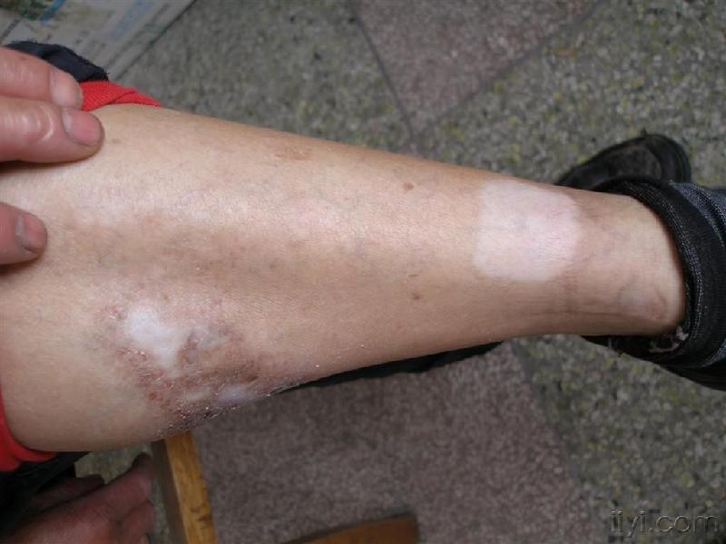 腿上长的白斑到底是什么呢