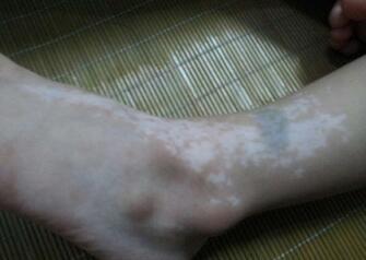 武汉治疗白斑的医院在哪里