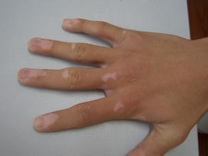 武汉专业治疗白斑的医院