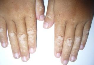 武汉治疗白斑病医院排名?手部出现白癜风的原因有什么呢
