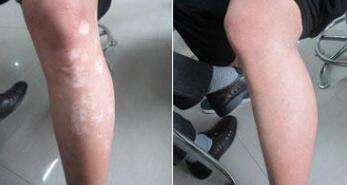 湖北有没有看白癜风医院?腿部白癜风不治疗会有哪些危害呢?